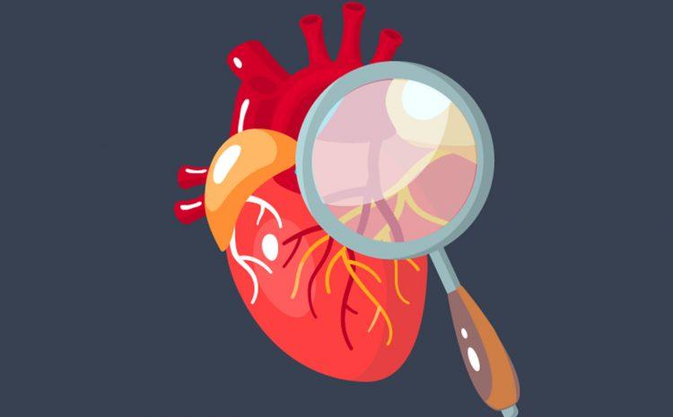 Cara Mendeteksi Penyakit Jantung Dengan Mudah Dan Cepat